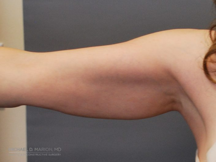 Arm liposuction utah county
