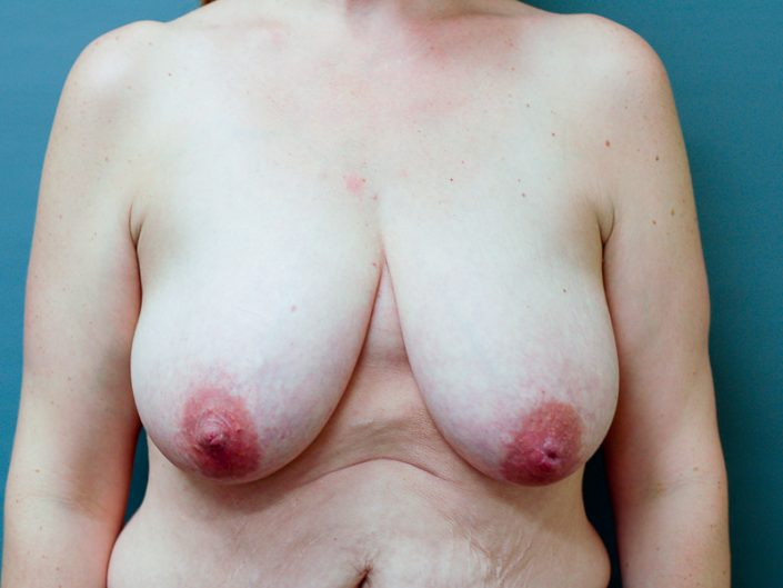 breast lift utah county