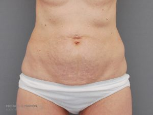 tummy tuck utah county